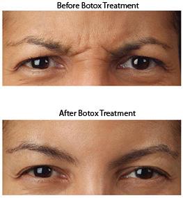 BotoxBA2