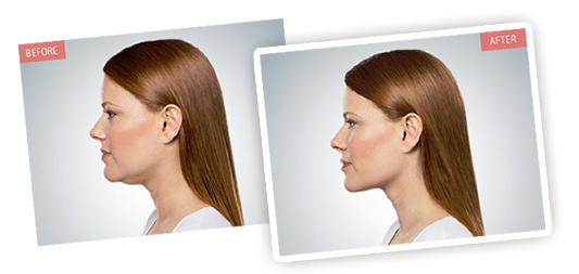 Kybella - Before and After