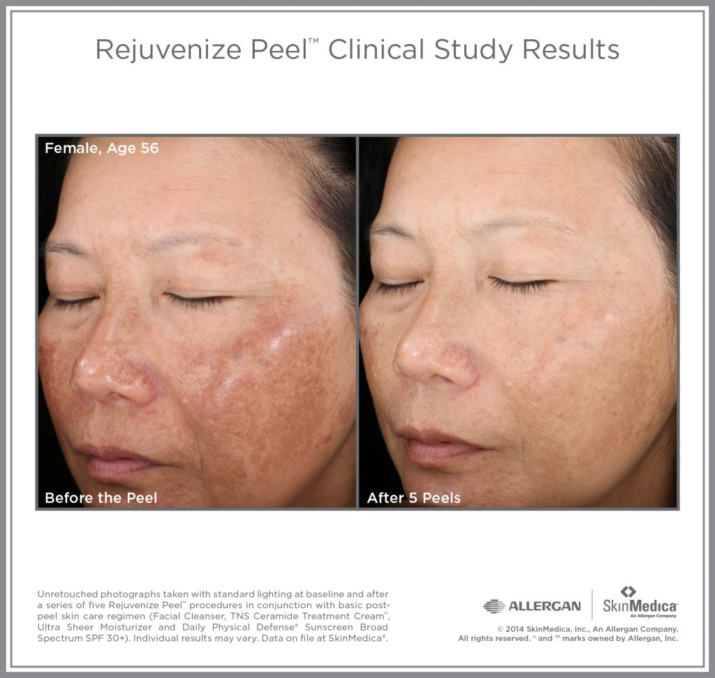 Rejuvenize peel after care and treatment info | about face.